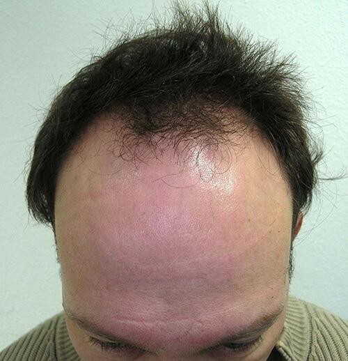 Haargrens voor haarstransplantatie