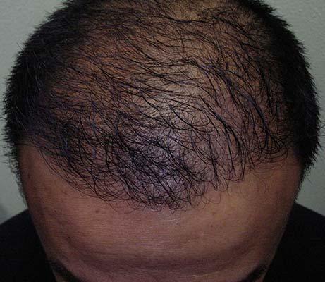 Haartransplantatie man haargrens na behandeling