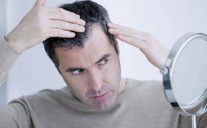 Haaruitval door androgene alopecia