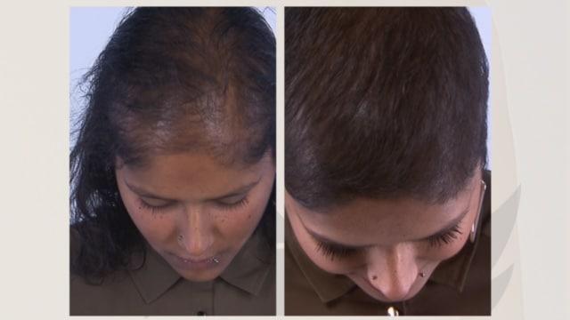 Voor en na fotos lelijke eendjes Indrani haartransplantatie