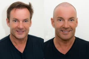 Gerard Joling harttransplantatie Hair Science Institute