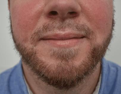 Resultaat man baard