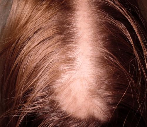 litteken voor haartransplantatie