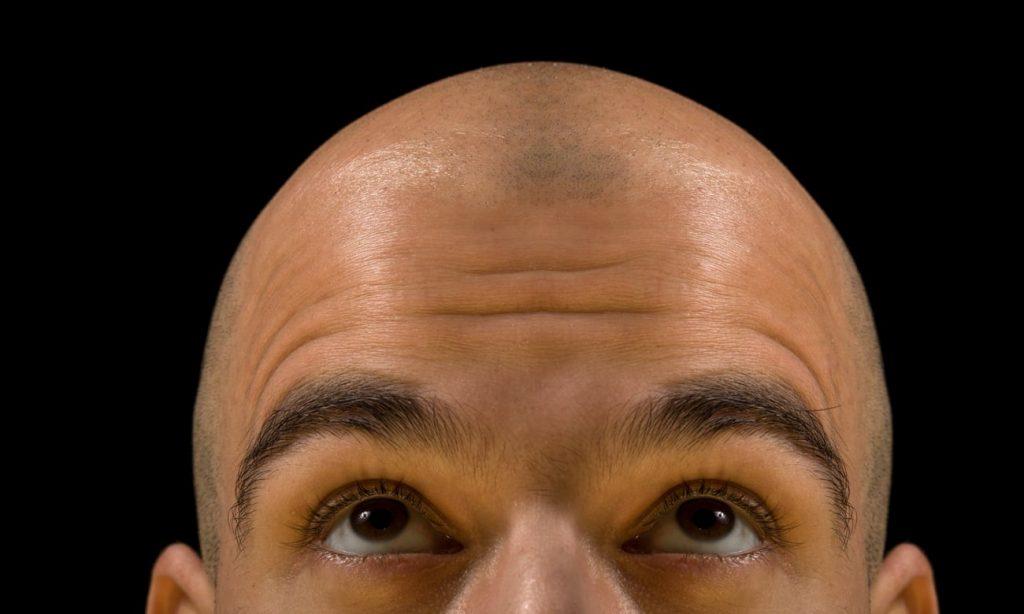 Alopecia of kaalheid, hoe ontstaat het?