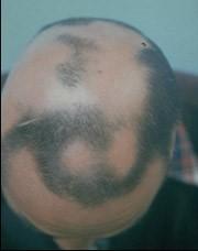 Vormen van alopecia: alopecia areata