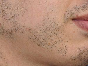 Vormen van alopecia: alopecia areata in baard