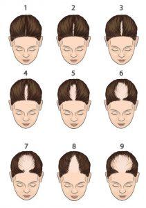 Hair Science Institute-types haaruitval
