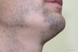 Hair Science Institute-alopecia areata