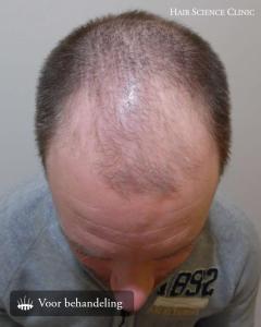 Ervaringen haartransplantatie