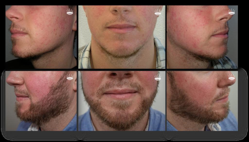 Haartransplantatie baard