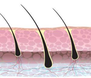 Haartransplantatie kosten grafts