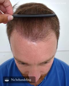 Haartransplantatie reviews