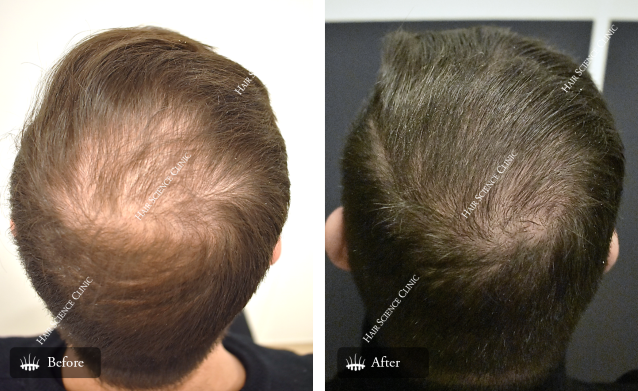 Alopecia Behandeling