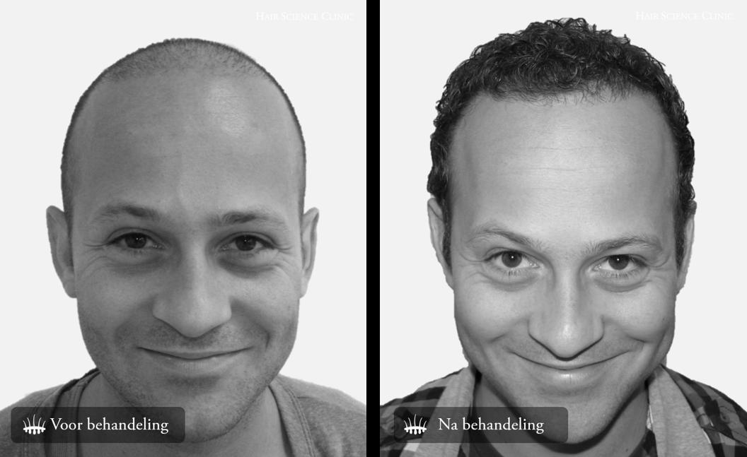 Fotos haartransplantatie