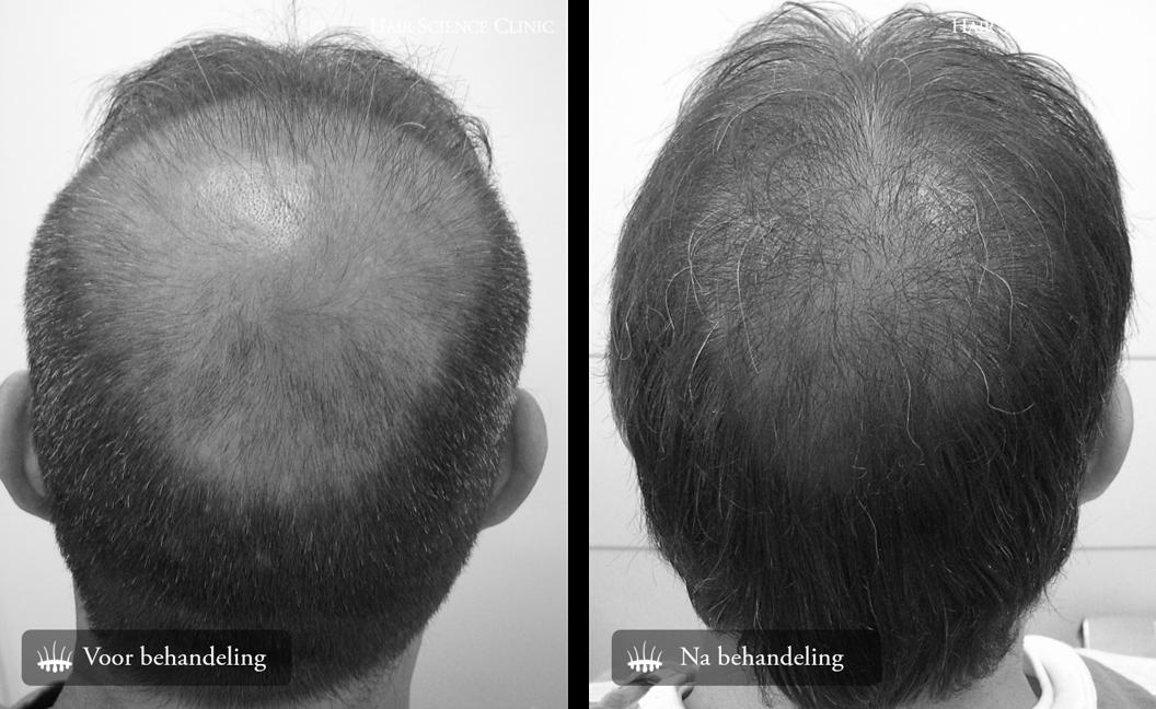 Haartransplantatie 2800 grafts