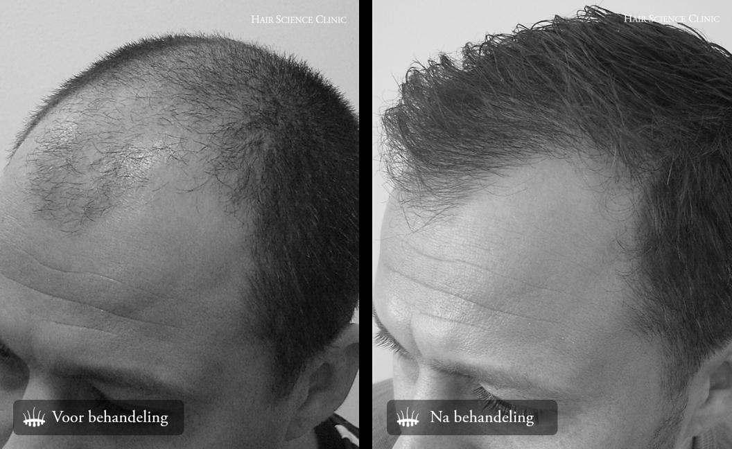 Haartransplantatie fotos man