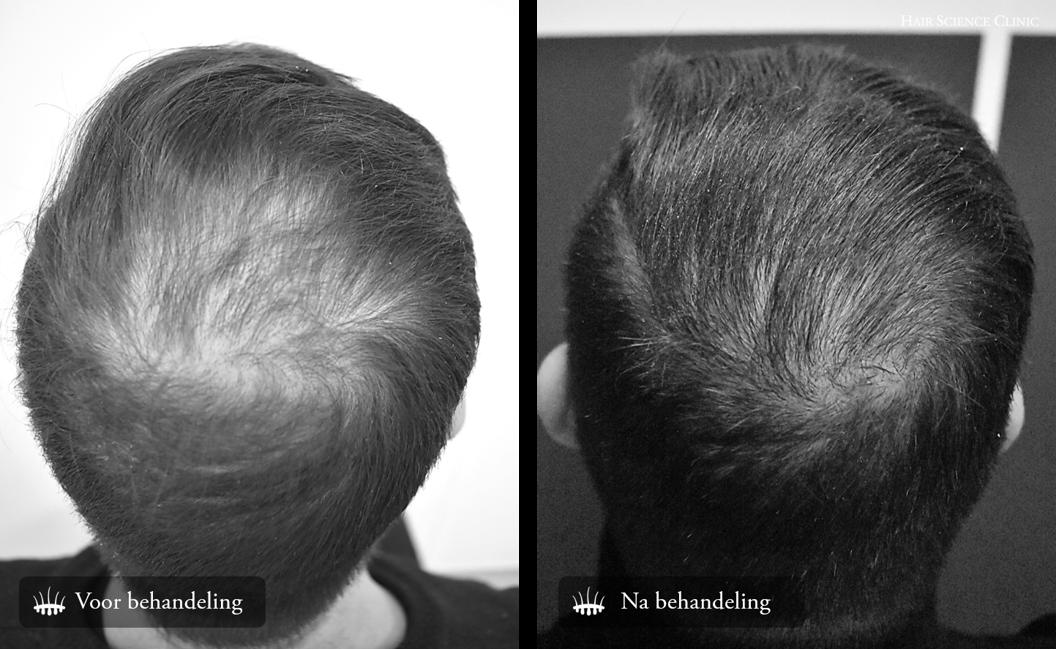 Haartransplantatie Haaruitval