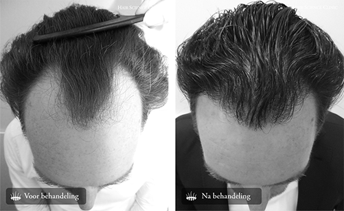 Haartransplantatie kosten inhammen