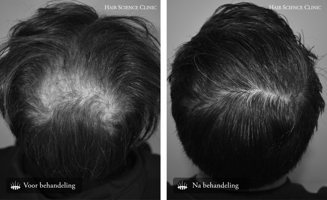 Haartransplantatie kruin behandeling