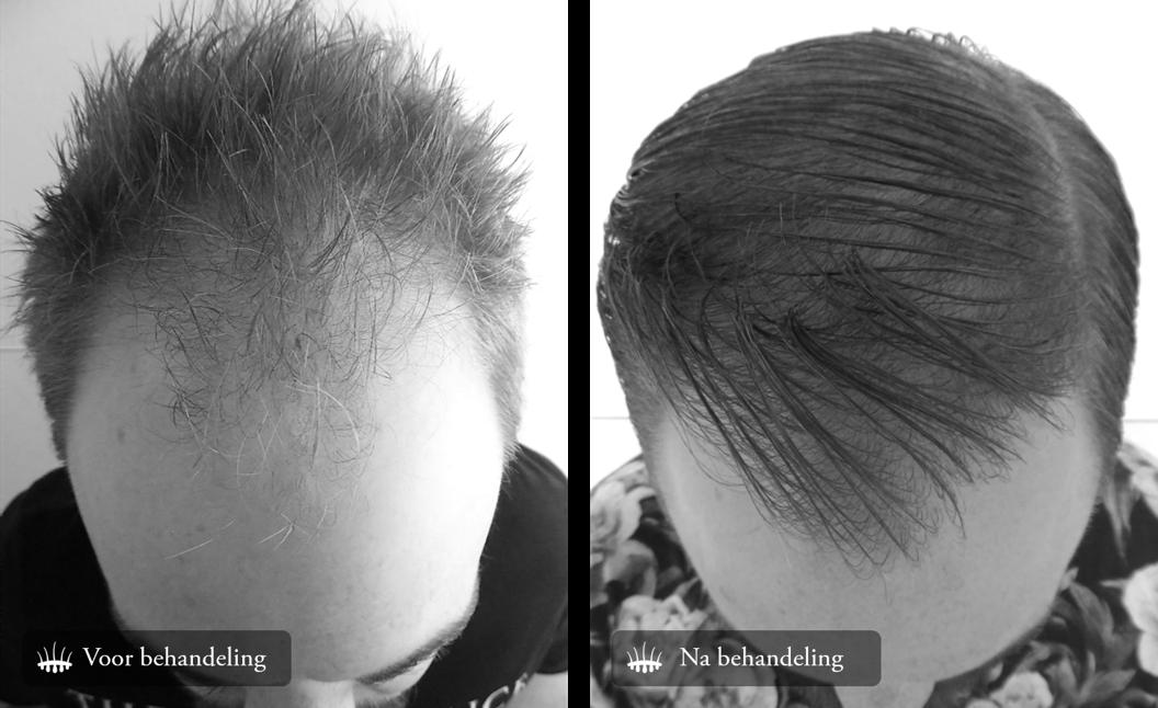 Haartransplantatie voor-en-na-foto