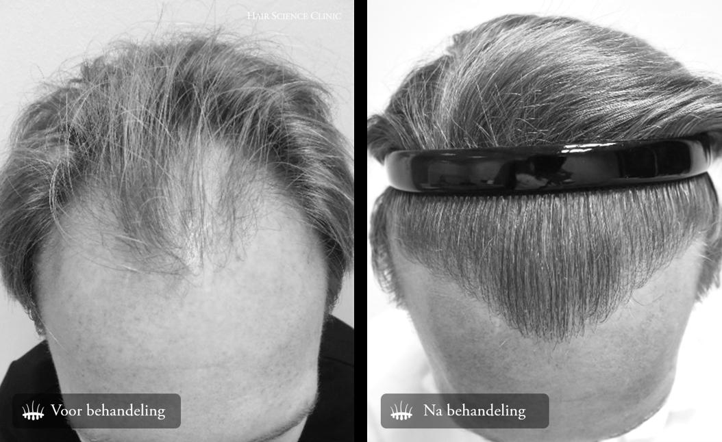 Haartransplantatie voor en na