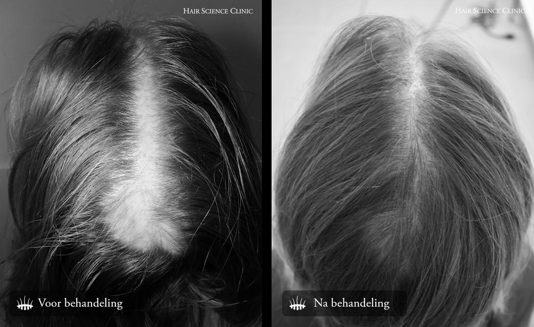 Haartransplantatie vrouw kruin