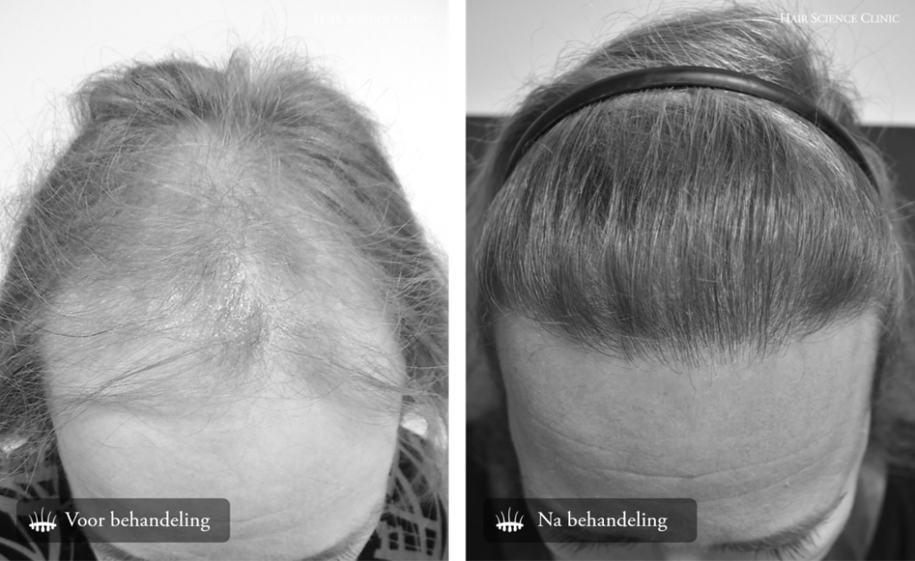 Educatiebehandeling: Haartransplantatie lagere kosten