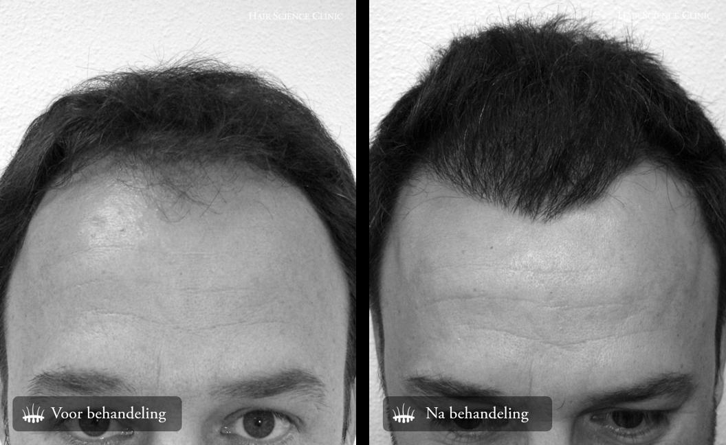 Voor na foto Haartransplantatie
