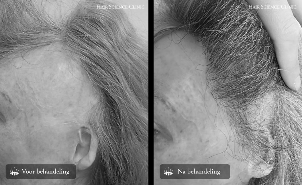 brandwonden haartransplantatie