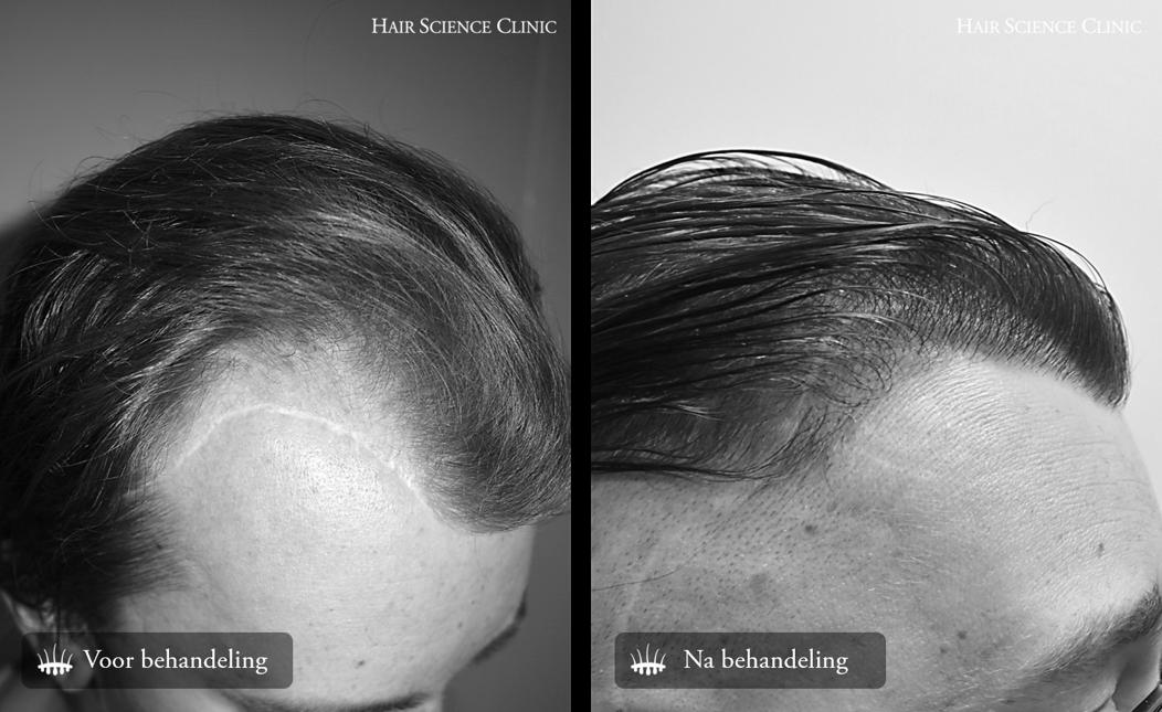 haartransplantatie littekenweefsel