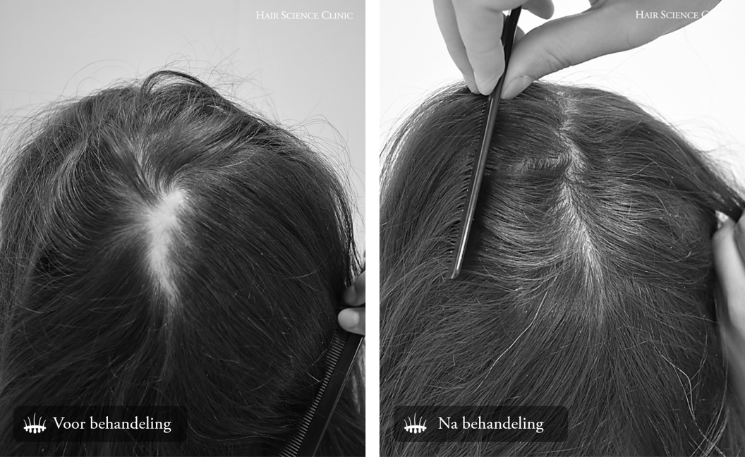 litteken haartransplantatie