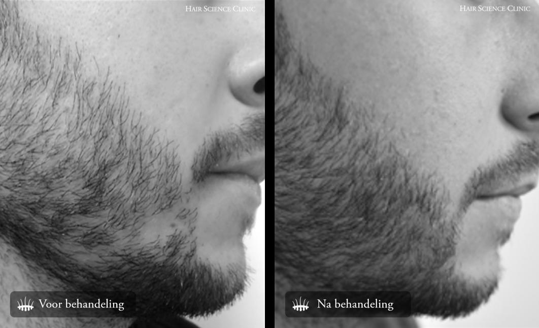 Resultaat baardtransplantatie