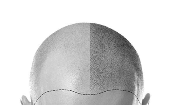 Tricopigmentatie