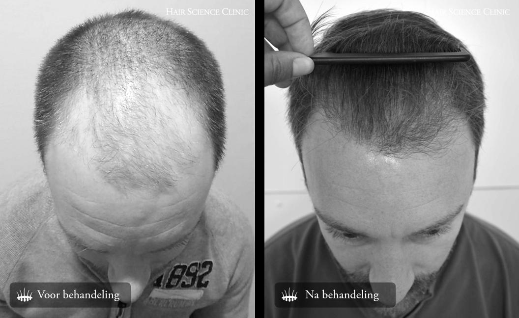 Haargroei na haartransplantatie