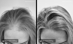 Meestgestelde vragen over haartransplantatie Hair Science Clinic