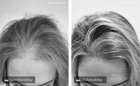 aarsparende haartransplantatie