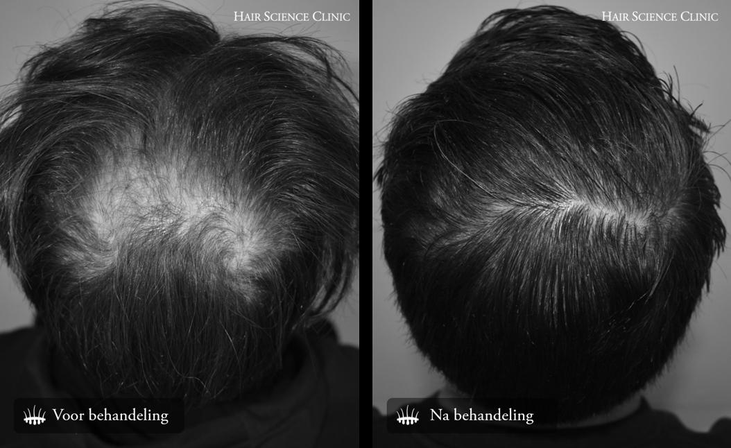 Haarsparende haartransplantatie