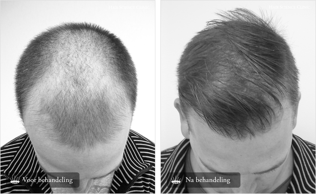 Haartransplantatie advies