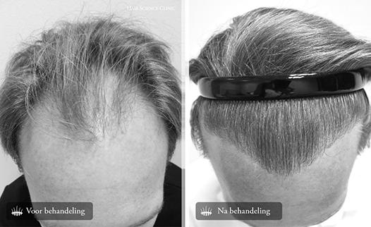 Haartransplantatie groeiproces