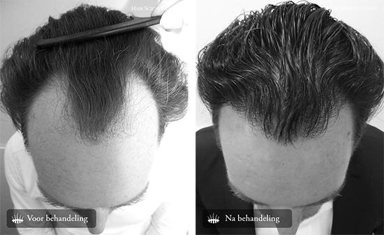 Haartransplantatie man voor en na