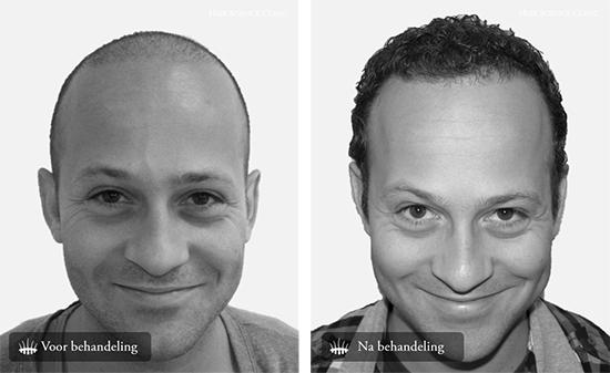 Haartransplantatie mannen behandeling