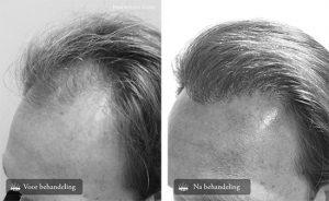 Haartransplantatie mannen inhammen