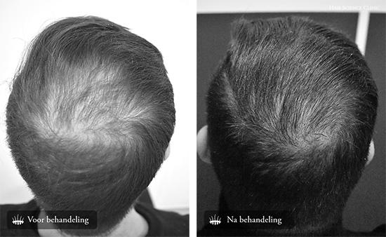 Haartransplantatie mannen kruin