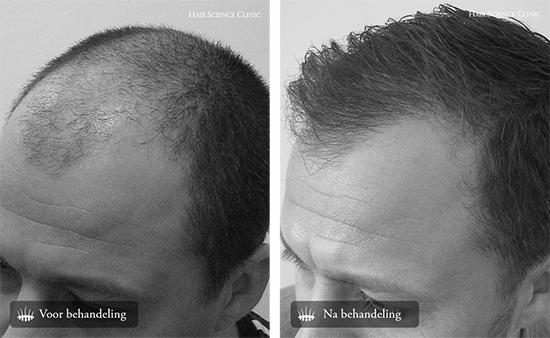 Haartransplantatie mannen resultaat