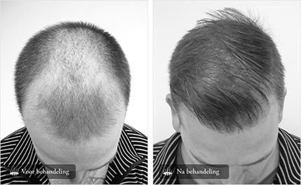 Haartransplantatie voor en-na foto's man