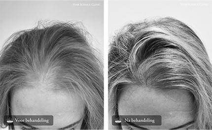 Haartransplantatie voor en-na foto's vrouw