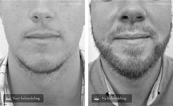 Mannen haartransplantatie baard