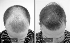 Onzichtbare haartransplantatie
