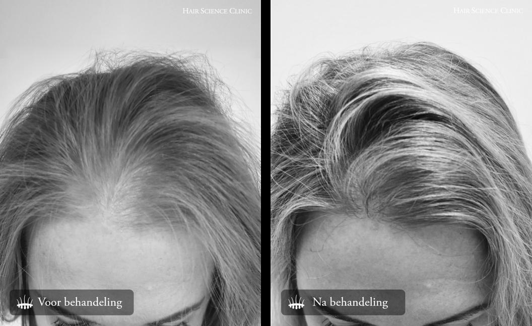 Haartransplantatie dames
