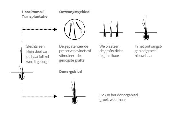 Haartransplantatie proces of fases